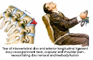 Back Pain Car Accident Injuries
