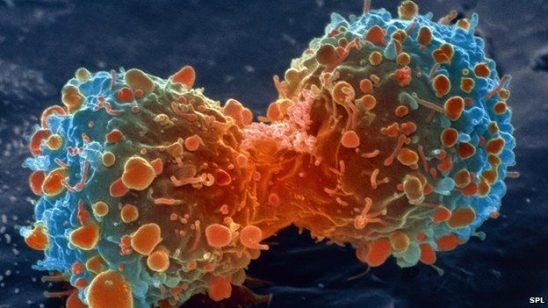 cancer-1-548x308
